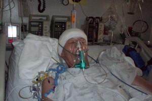 2009 after brain surgery